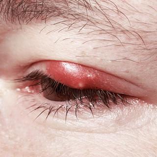 痒い 目 の 周り が