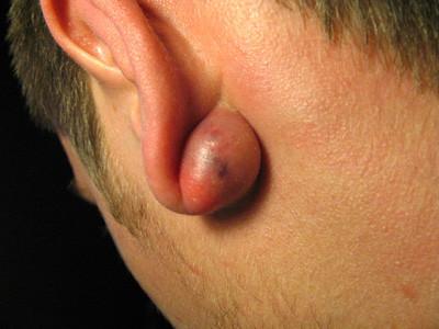 垢や皮脂が皮膚の下の袋にたまる腫瘍のことを粉瘤と呼ぶ