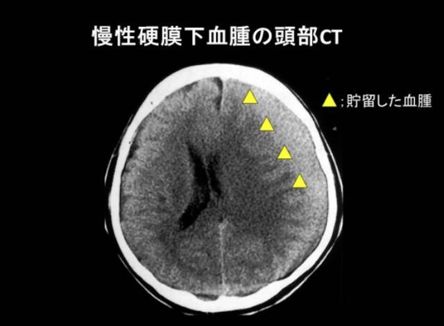 慢性硬膜下血腫の頭部CT(高島平中央総合病院提供)