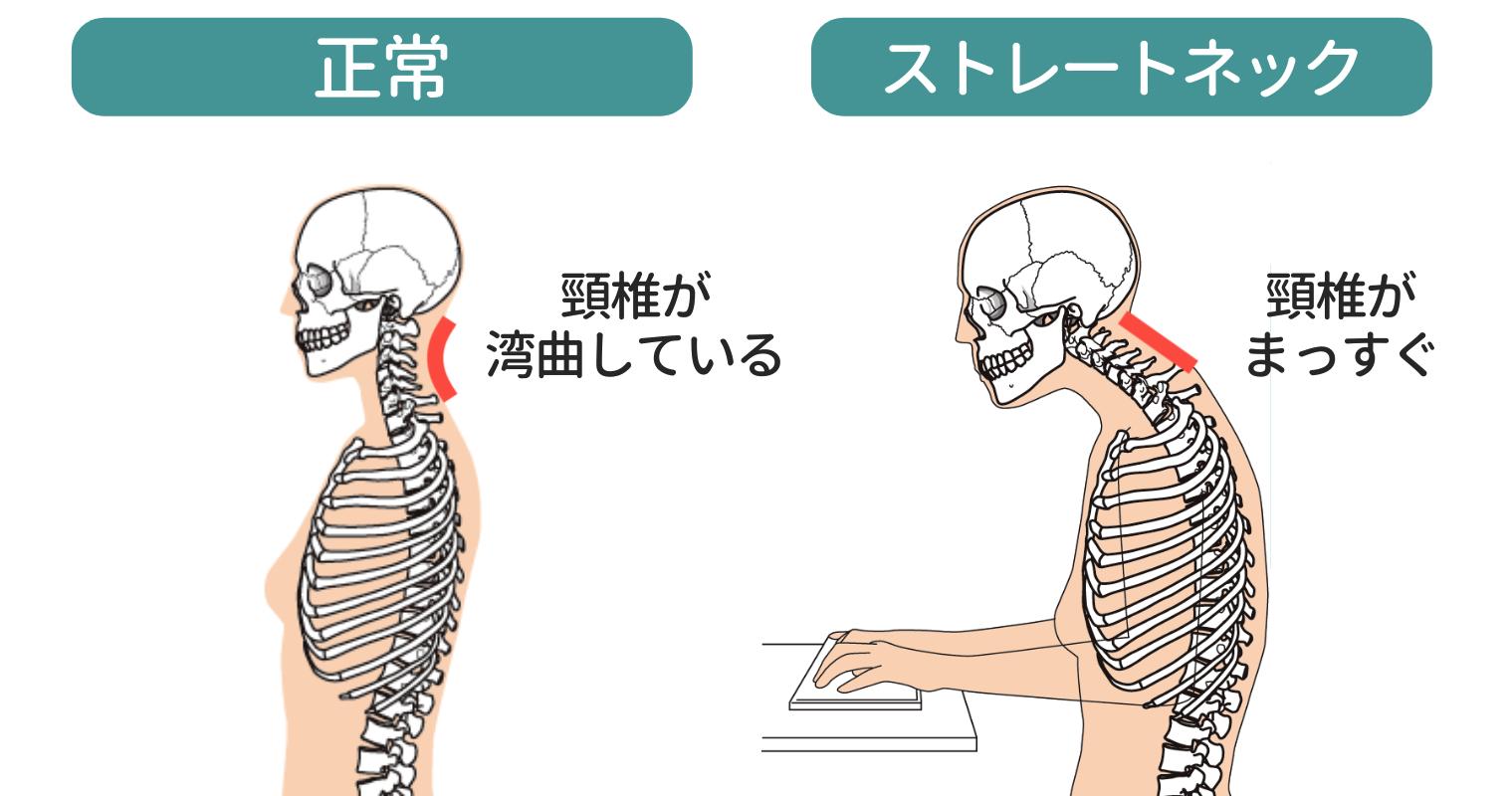 正しい頸椎とストレートネック