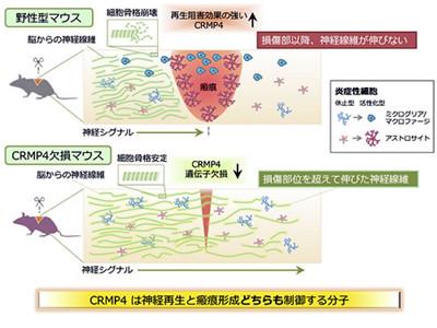 脊髄損傷の治療標的タンパク質を特定