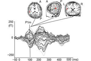 自閉スペクトラム症児の一部は、音への脳反応が発達している - 金大が確認